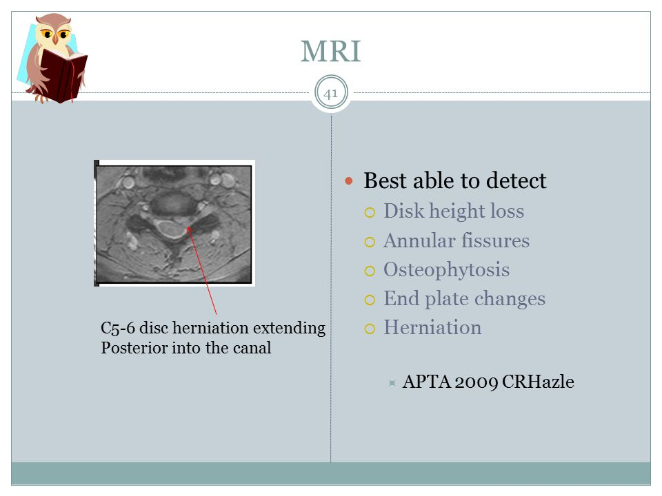 MRI Best able to detect Disk height loss Annular fissures