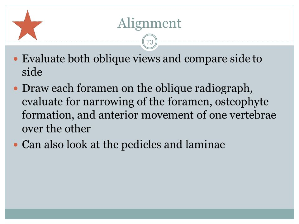 Alignment Evaluate both oblique views and compare side to side