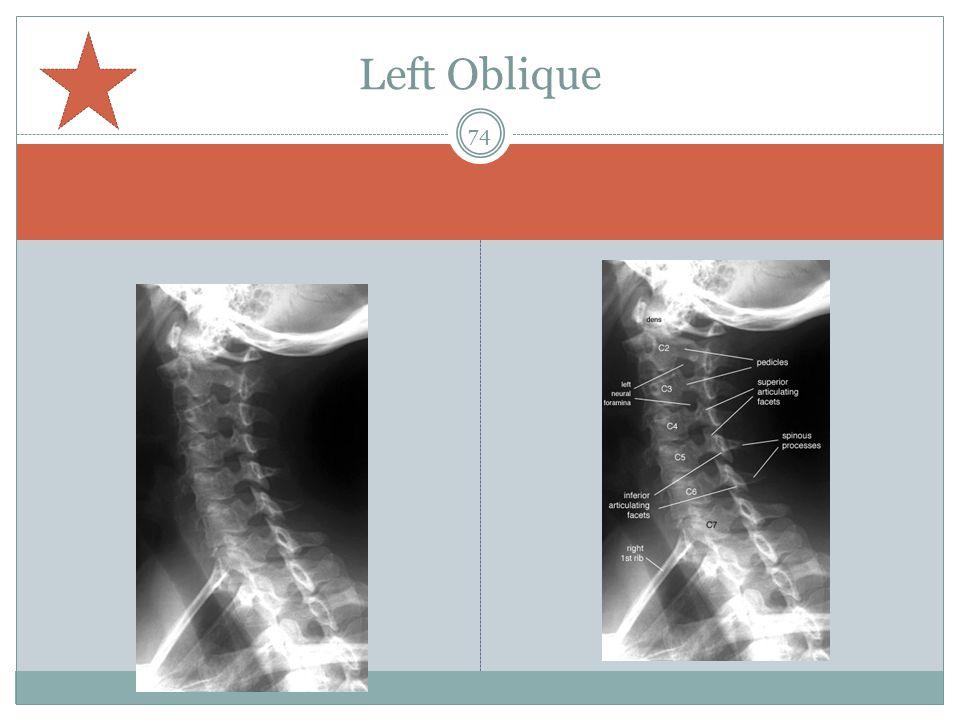 Left Oblique