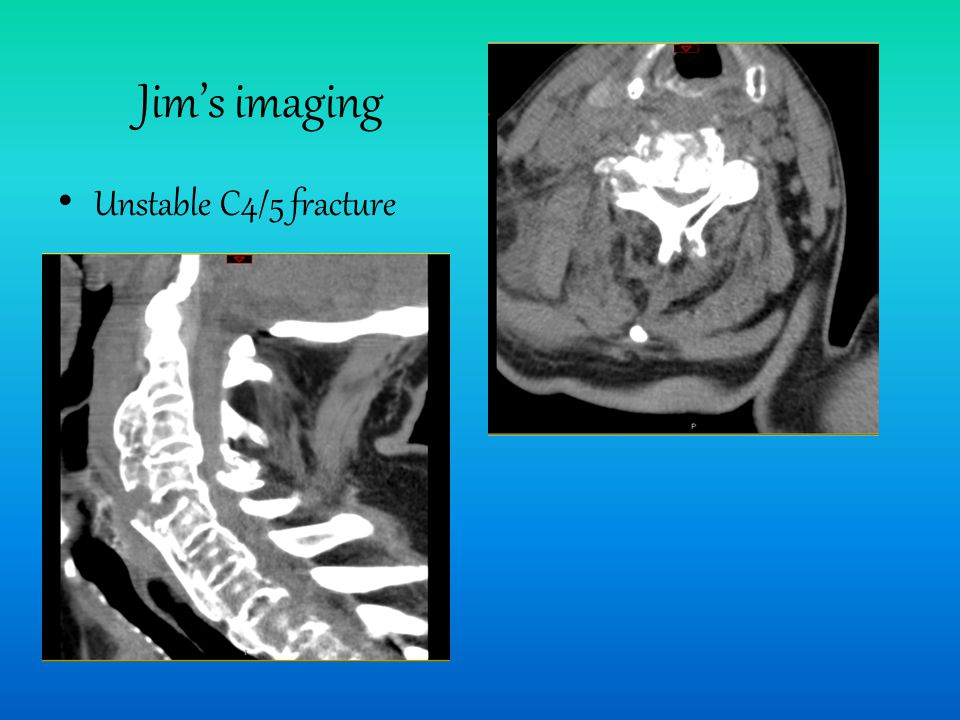 Jim's imaging Unstable C4/5 fracture