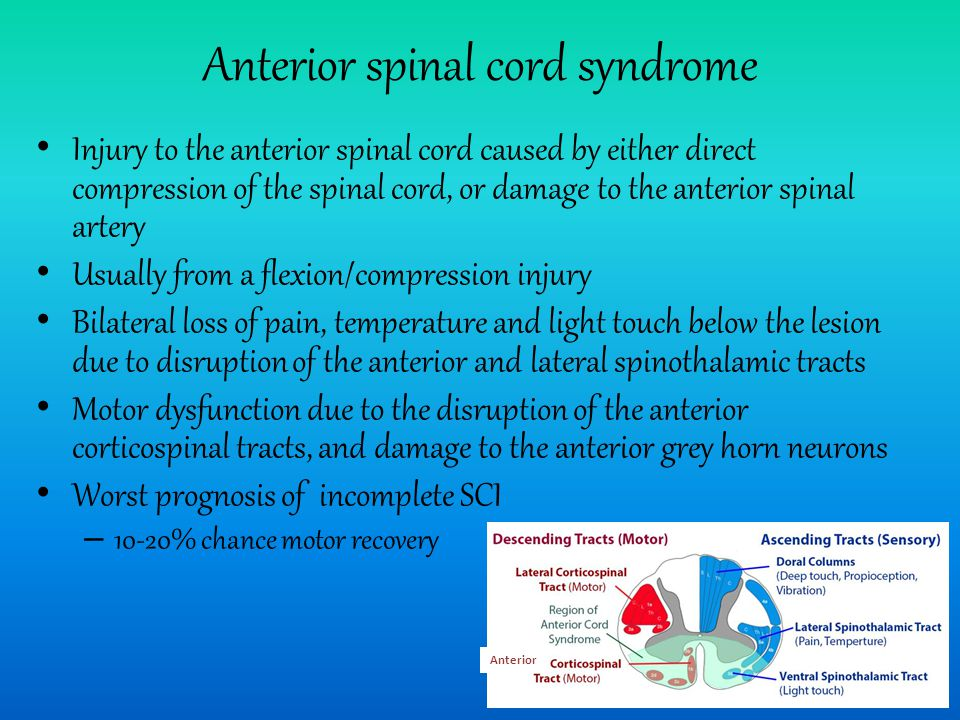 Anterior spinal cord syndrome