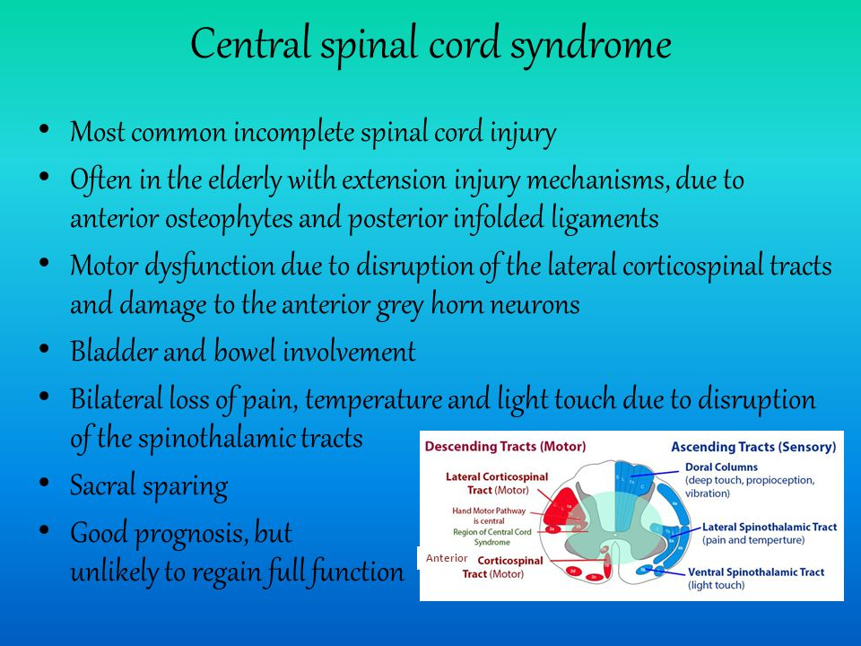 Central spinal cord syndrome