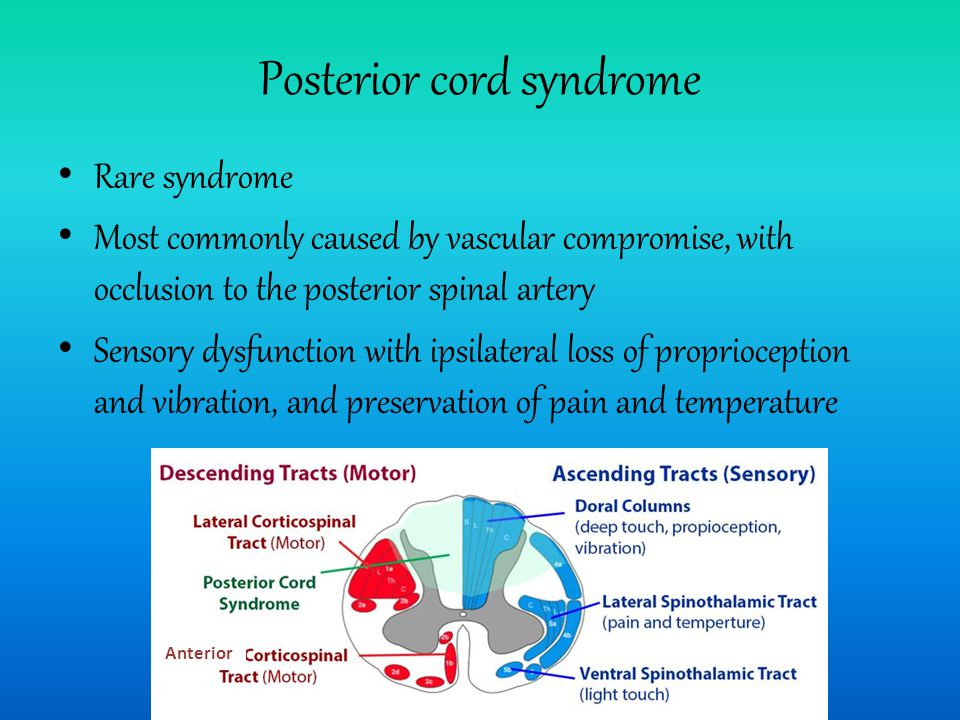 Posterior cord syndrome