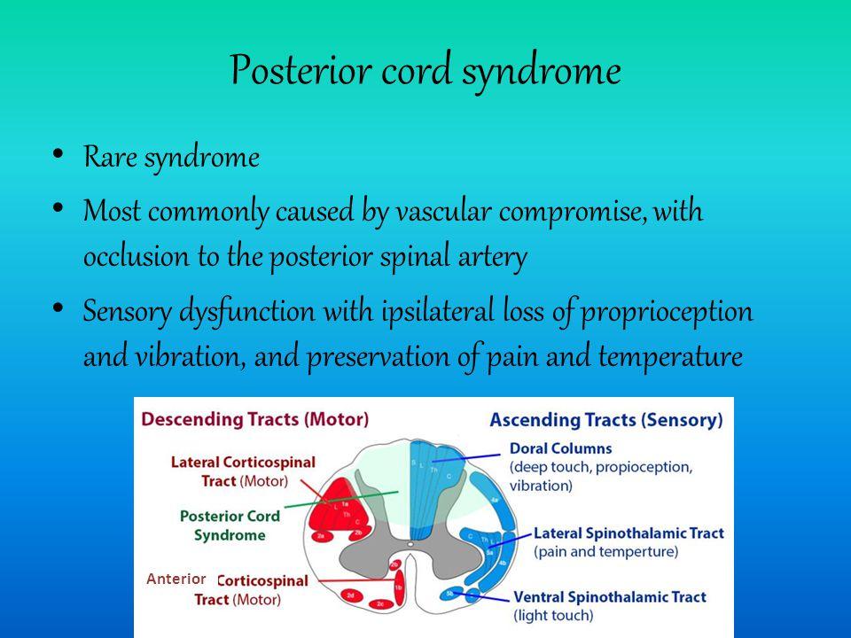 Posterior cord syndrome