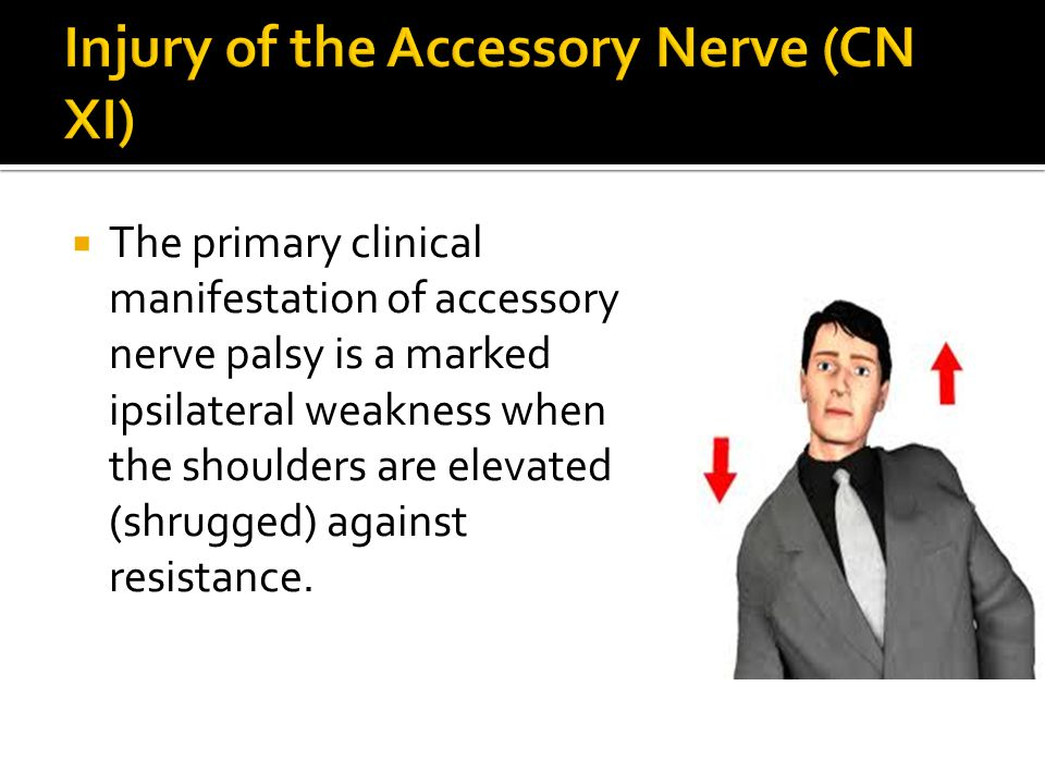 Injury of the Accessory Nerve (CN XI)