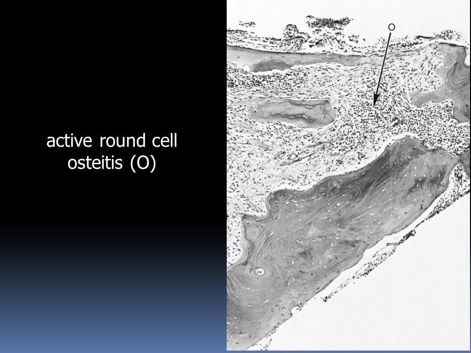 active round cell osteitis (O)