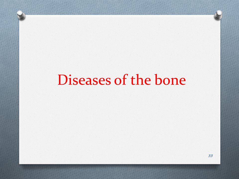 Diseases of the bone