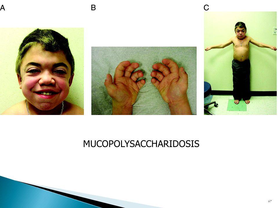 MUCOPOLYSACCHARIDOSIS