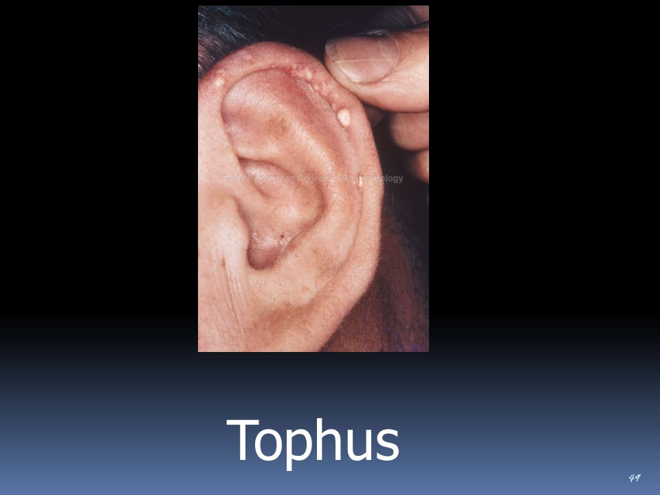 Tophus