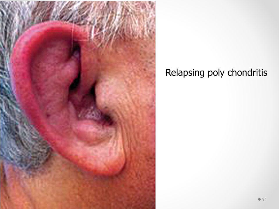Relapsing poly chondritis