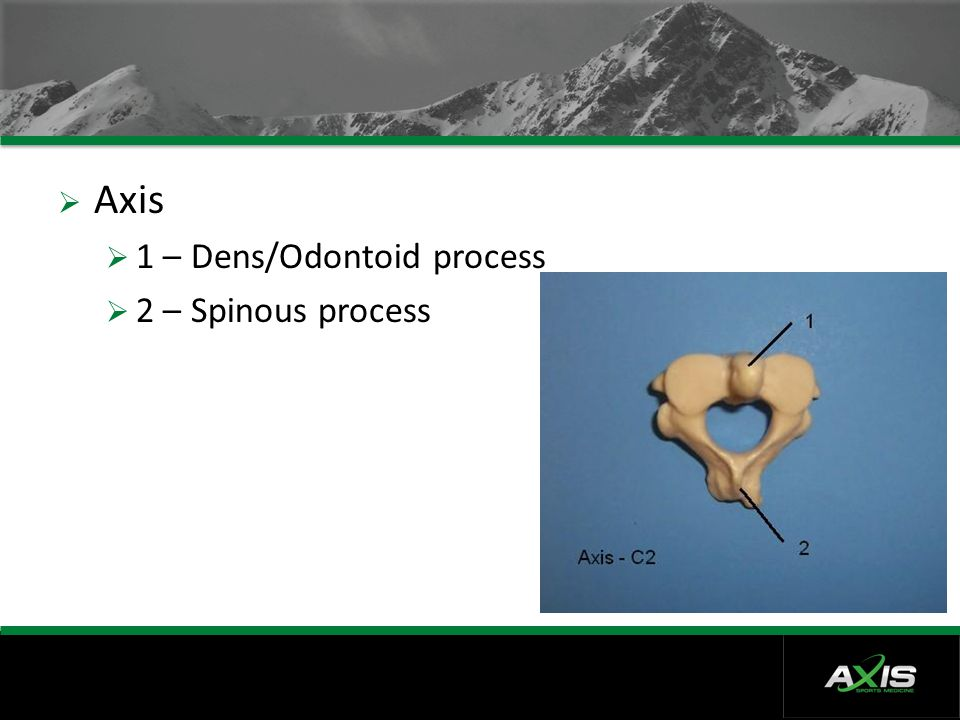 Axis 1 – Dens/Odontoid process 2 – Spinous process