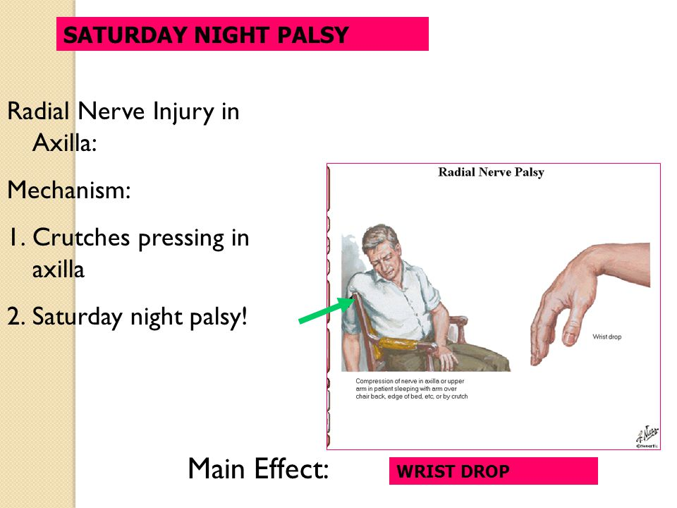 Main Effect: Radial Nerve Injury in Axilla: Mechanism: