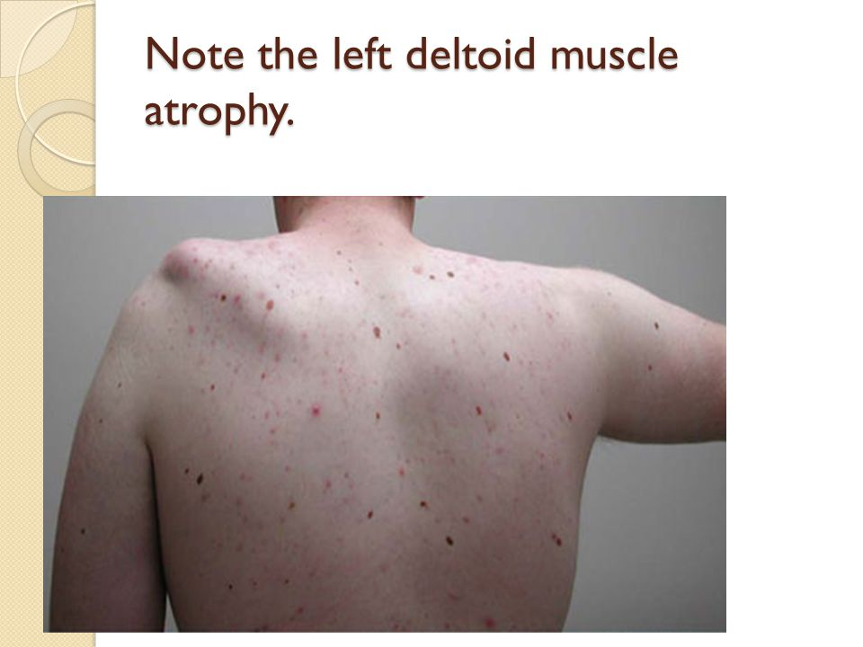 Note the left deltoid muscle atrophy.