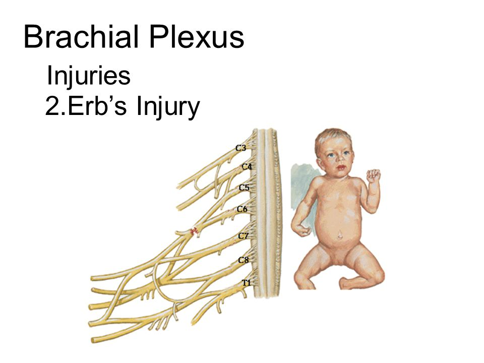 Brachial Plexus Injuries 2.Erb's Injury
