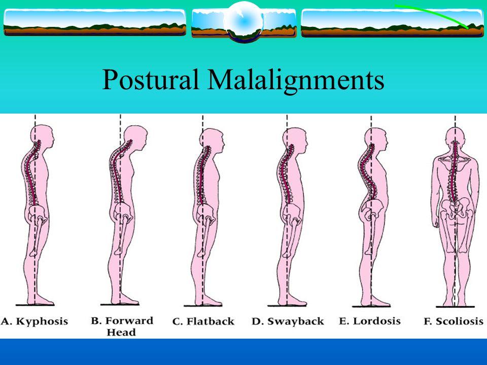 Postural Malalignments