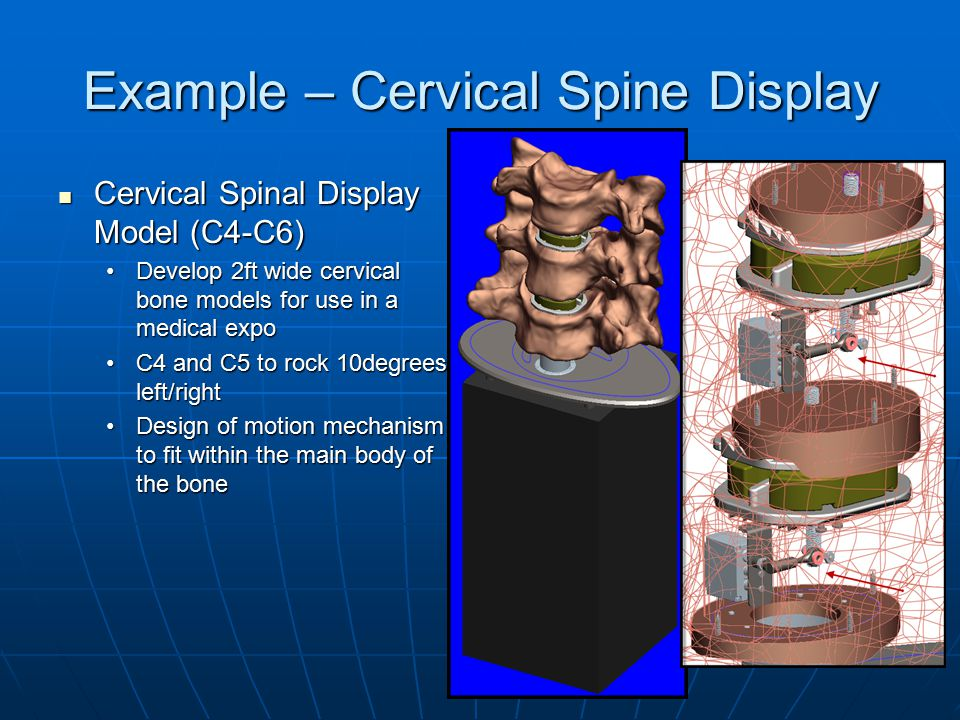 Example – Cervical Spine Display