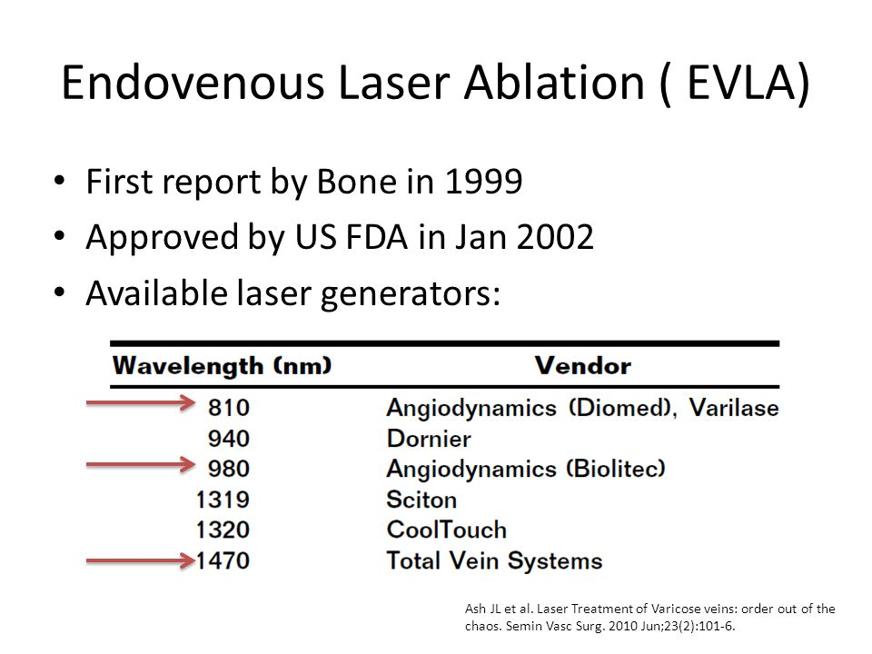 Endovenous Laser Ablation ( EVLA)