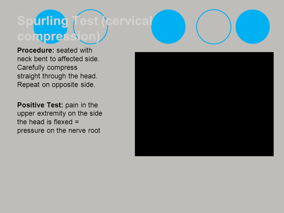 Spurling Test (cervical compression)