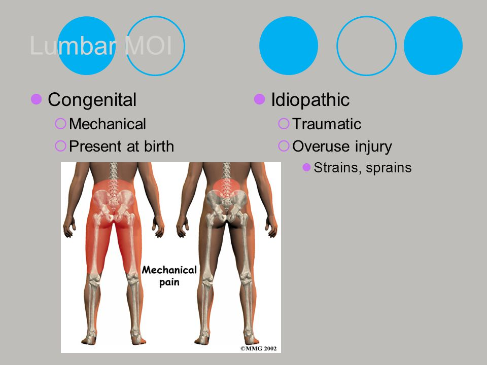 Lumbar MOI Congenital Idiopathic Mechanical Present at birth Traumatic