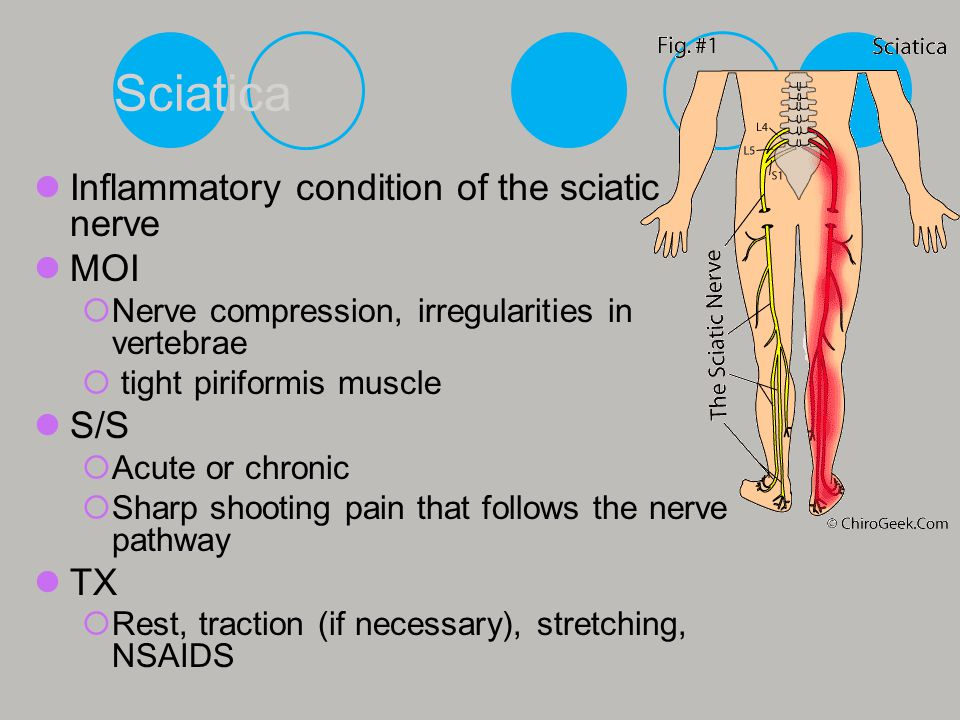 Sciatica Inflammatory condition of the sciatic nerve MOI S/S TX