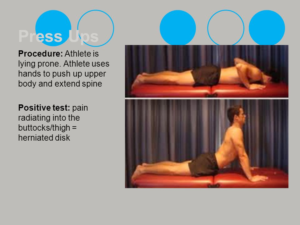 Press Ups Procedure: Athlete is lying prone. Athlete uses hands to push up upper body and extend spine.