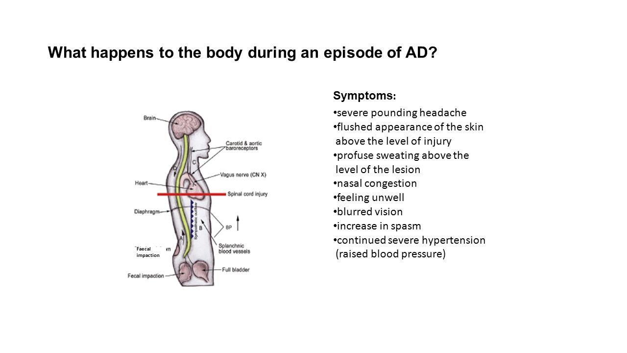 What happens to the body during an episode of AD