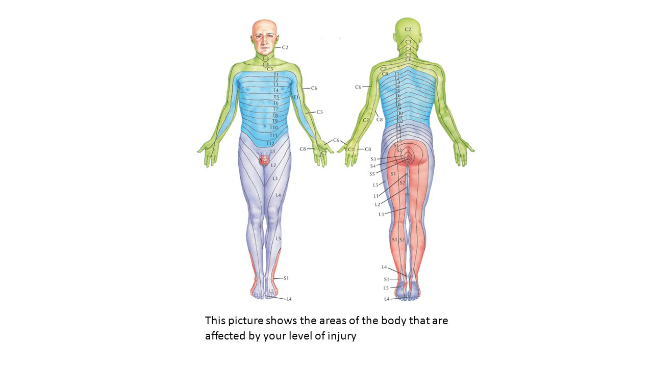This picture shows the areas of the body that are affected by your level of injury