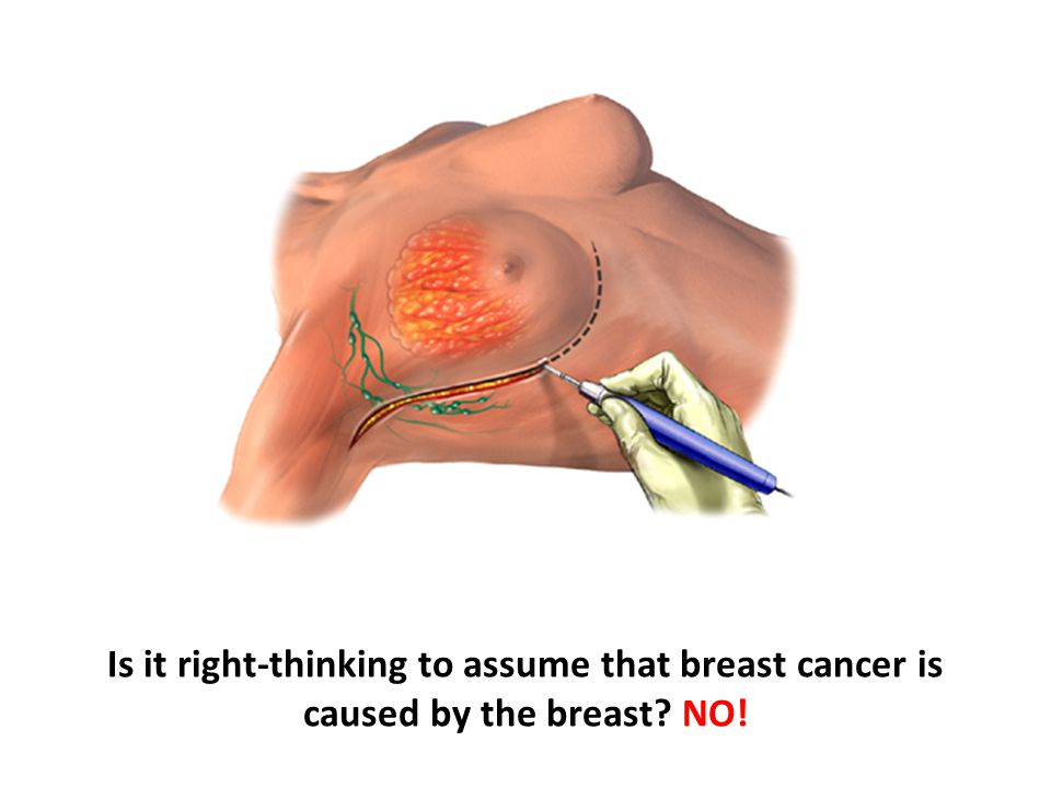 Is it right-thinking to assume that breast cancer is caused by the breast NO!