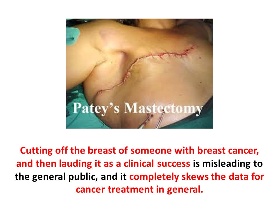 Cutting off the breast of someone with breast cancer, and then lauding it as a clinical success is misleading to the general public, and it completely skews the data for cancer treatment in general.