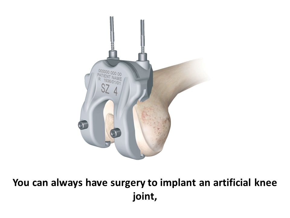 You can always have surgery to implant an artificial knee joint,