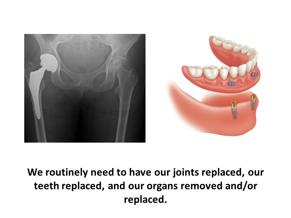 We routinely need to have our joints replaced, our teeth replaced, and our organs removed and/or replaced.