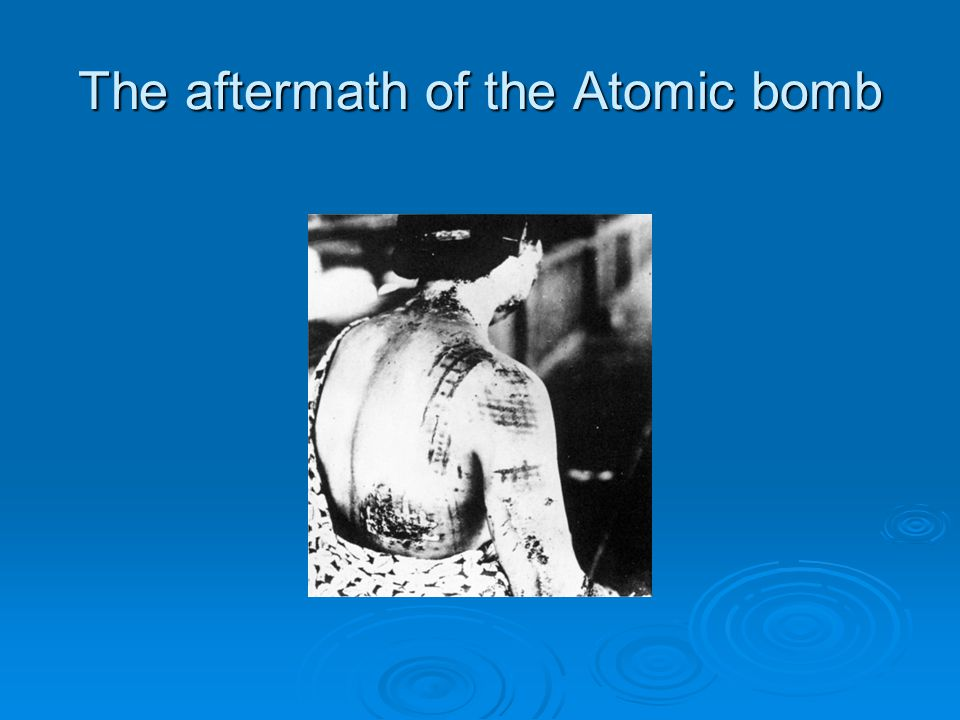 The aftermath of the Atomic bomb