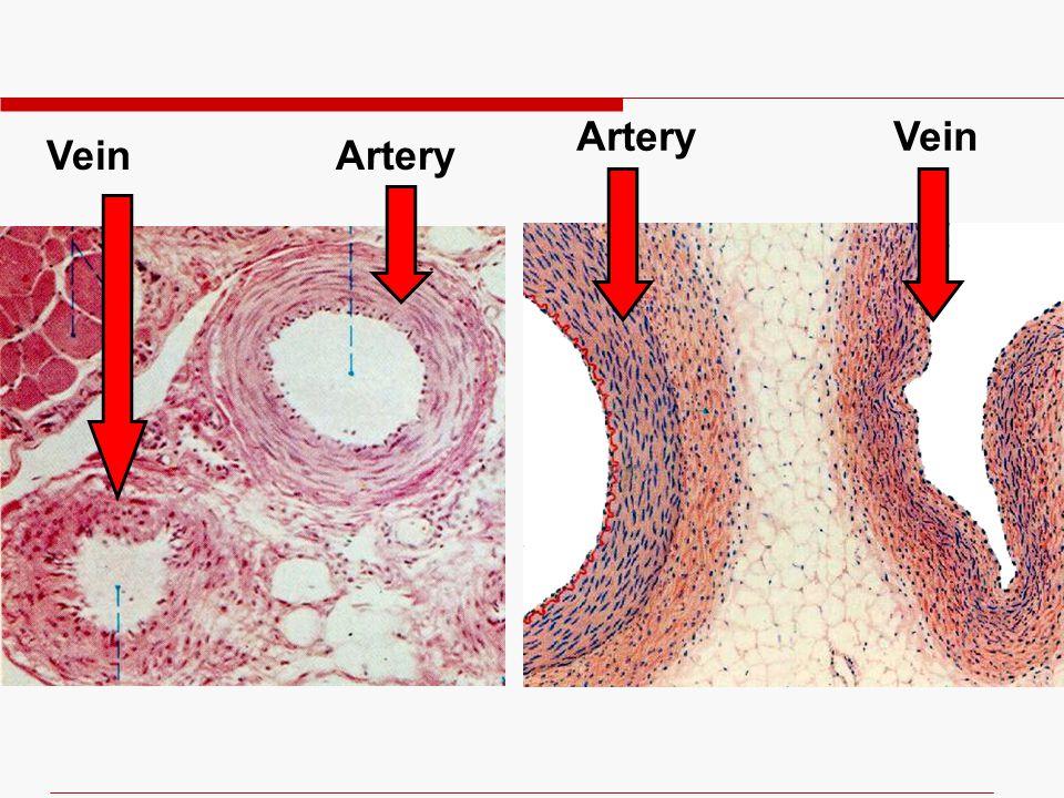 4/11/2017 Artery Vein Vein Artery