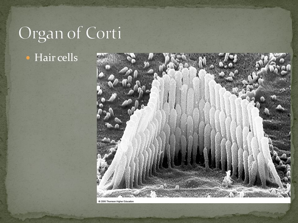 Organ of Corti Hair cells