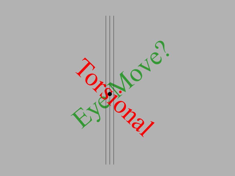 Eye Move Torsional
