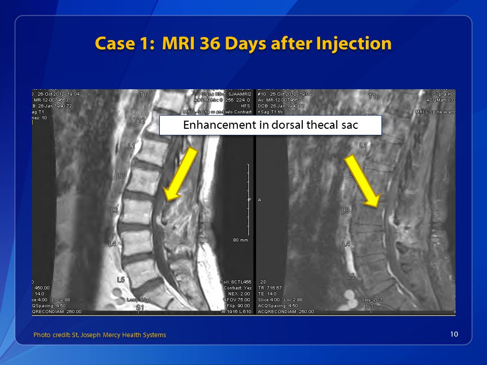 Case 1: MRI 36 Days after Injection