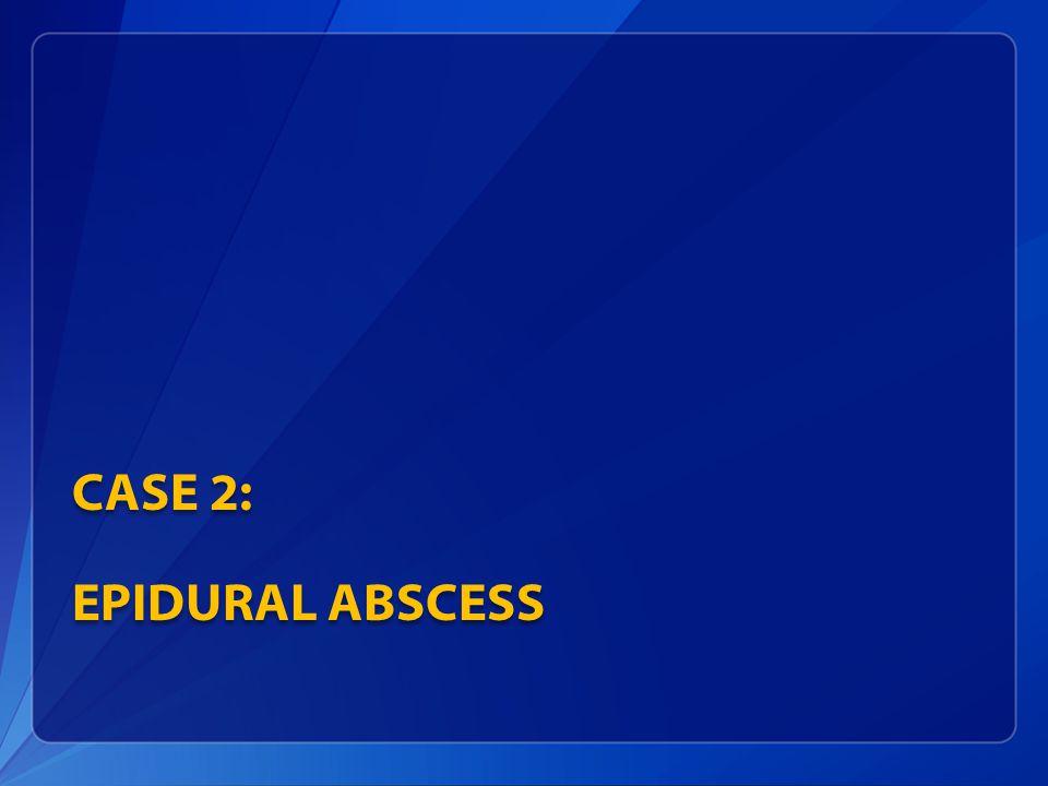 Case 2: Epidural Abscess