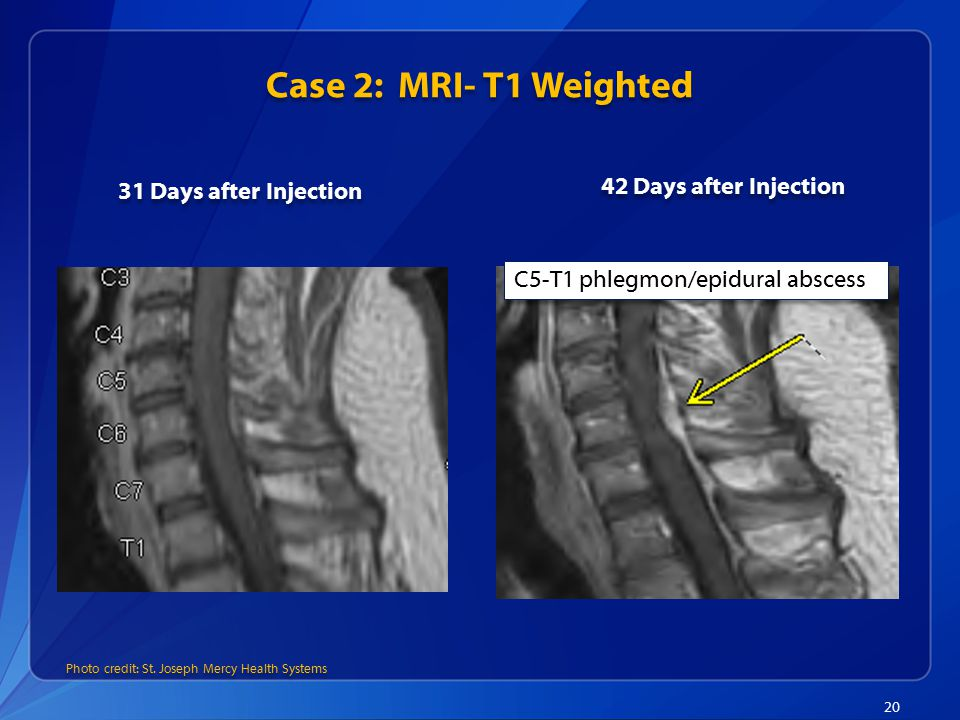 Case 2: MRI- T1 Weighted 42 Days after Injection