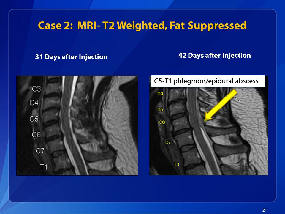 Case 2: MRI- T2 Weighted, Fat Suppressed