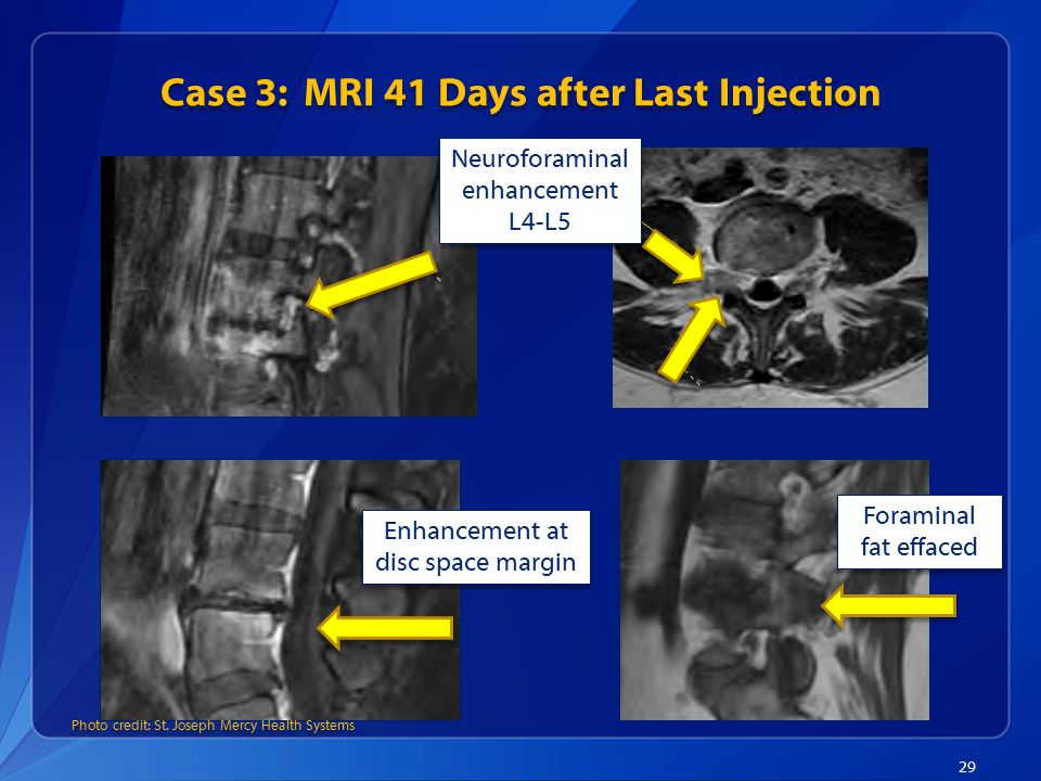 Case 3: MRI 41 Days after Last Injection
