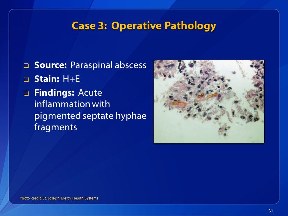 Case 3: Operative Pathology