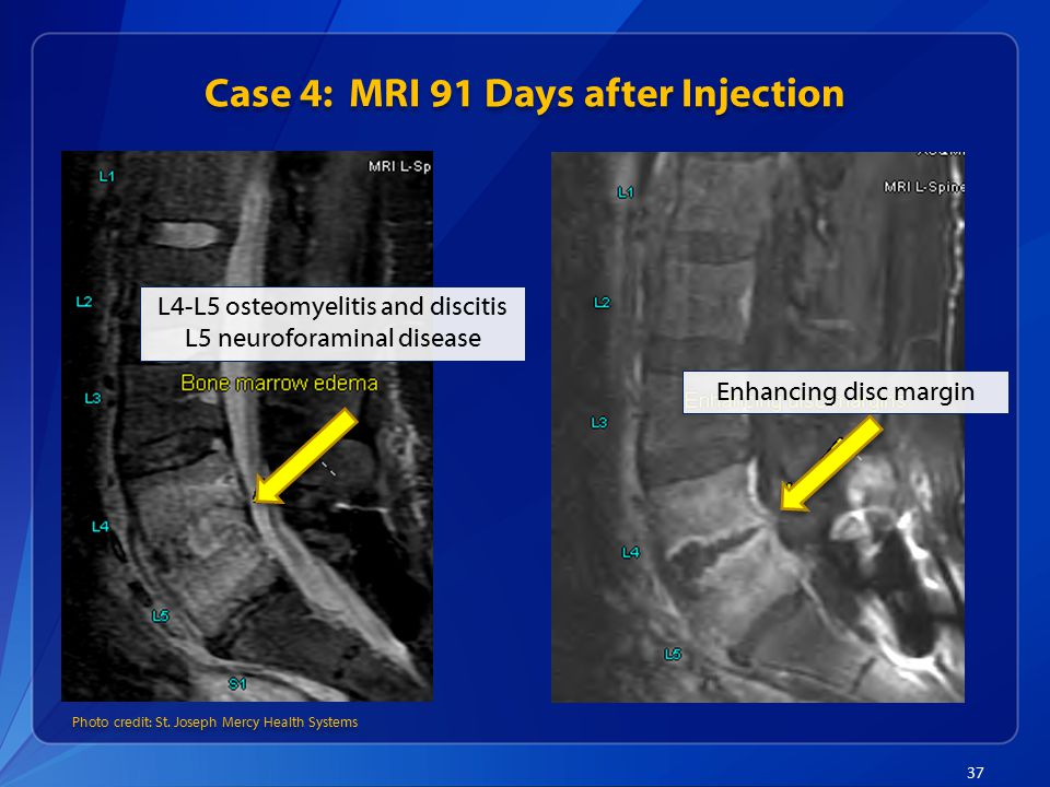 Case 4: MRI 91 Days after Injection