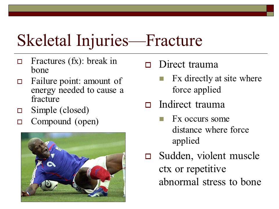Skeletal Injuries—Fracture