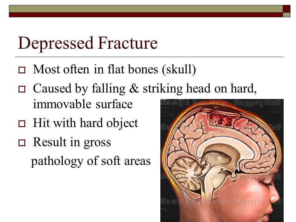 Depressed Fracture Most often in flat bones (skull)