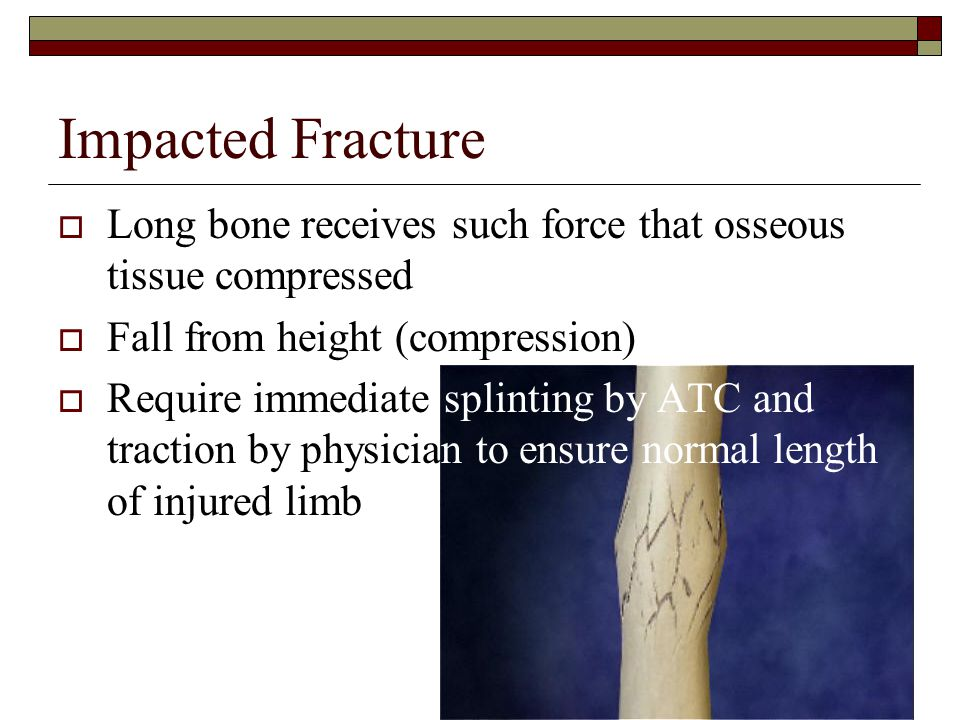 Impacted Fracture Long bone receives such force that osseous tissue compressed. Fall from height (compression)