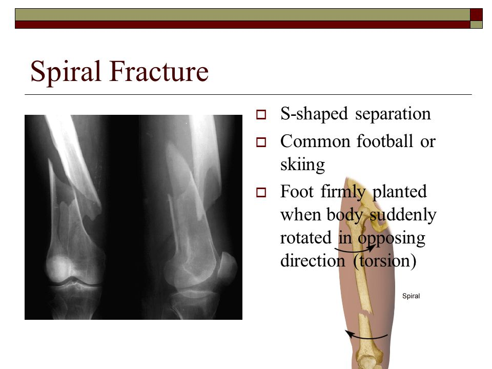 Spiral Fracture S-shaped separation Common football or skiing