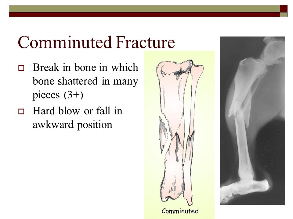 Comminuted Fracture Break in bone in which bone shattered in many pieces (3+) Hard blow or fall in awkward position.