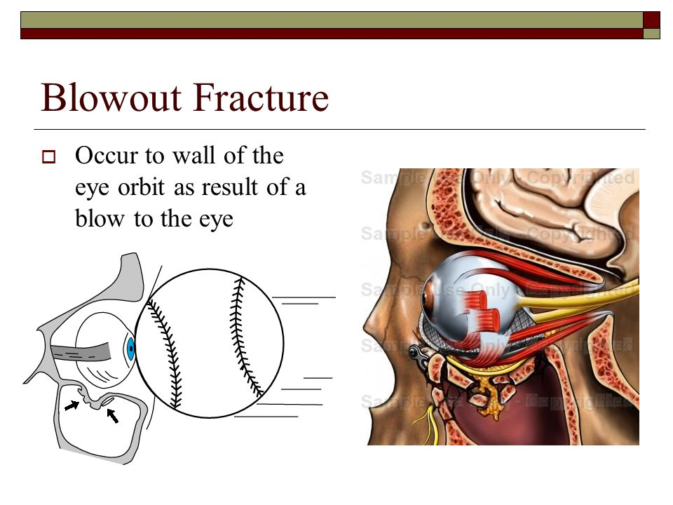 Blowout Fracture Occur to wall of the eye orbit as result of a blow to the eye