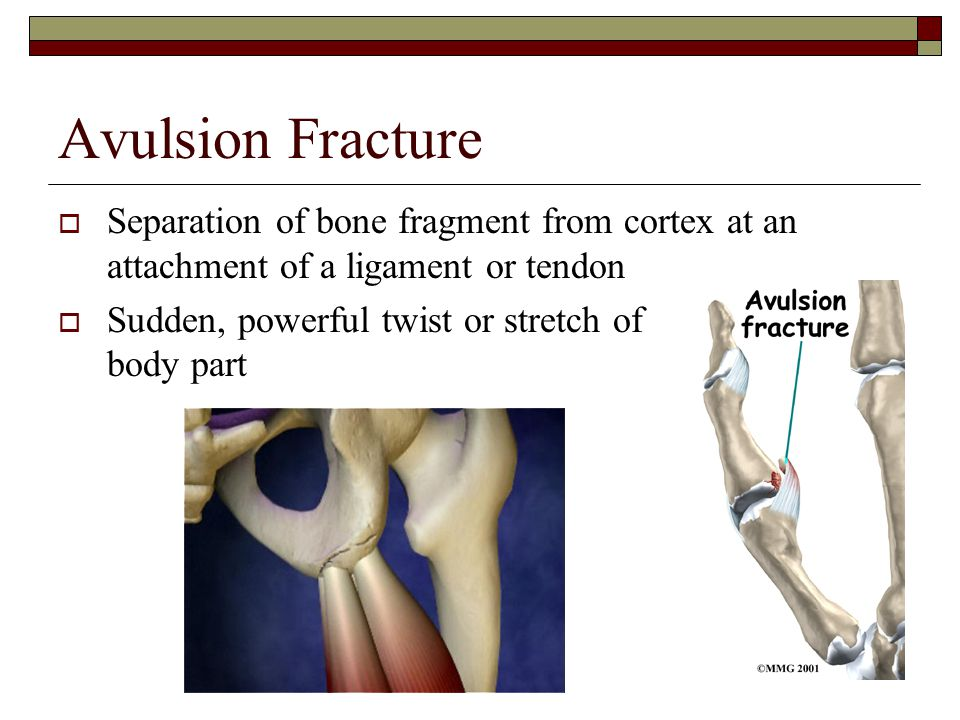 Avulsion Fracture Separation of bone fragment from cortex at an attachment of a ligament or tendon.