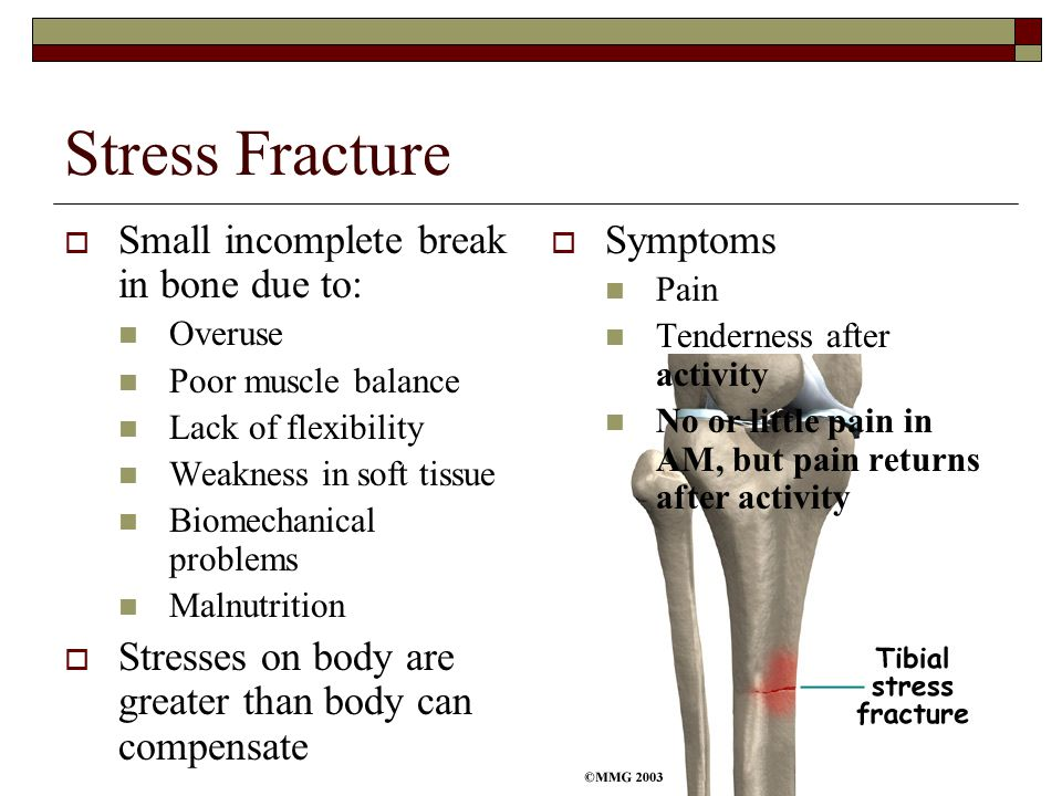 Stress Fracture Small incomplete break in bone due to: